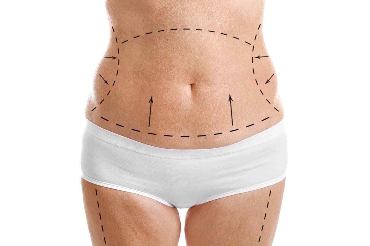 cosmetic-surgery-blog-05-1200x800.jpg