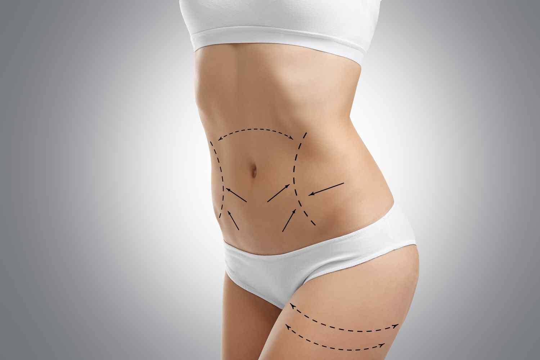 https://www.ozlemaras.com/wp-content/uploads/2017/08/cosmetic-surgery-blog-06.jpg