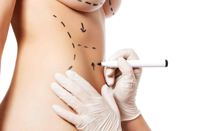 https://www.ozlemaras.com/wp-content/uploads/2017/08/cosmetic-surgery-blog-11.jpg