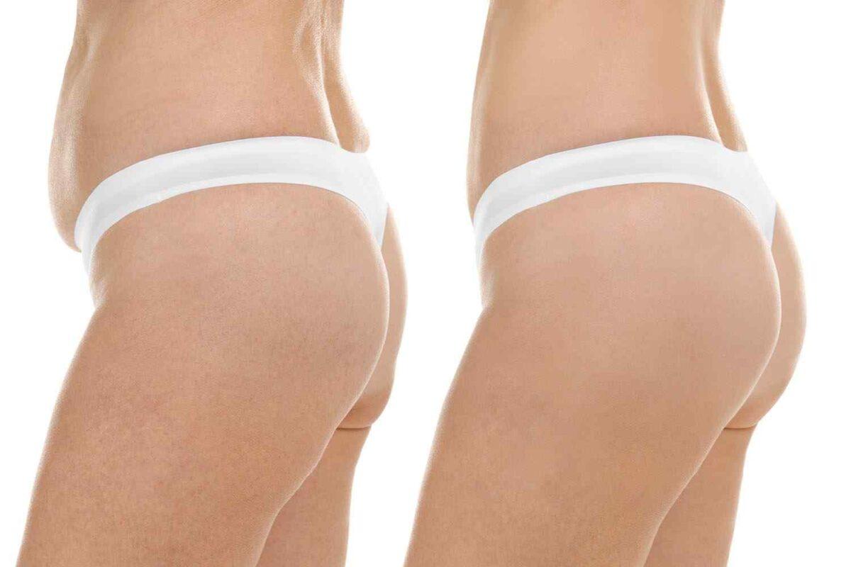 cosmetic-surgery-blog-18-1200x800.jpg