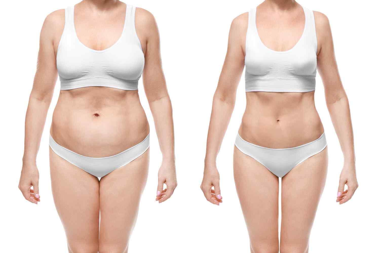 https://www.ozlemaras.com/wp-content/uploads/2017/08/cosmetic-surgery-blog-24.jpg